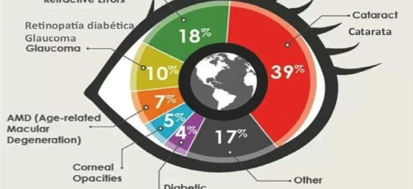 causas de la ceguera: imagen de una gráfica de sectores con los porcentajes de causas de la ceguera en el mundo
