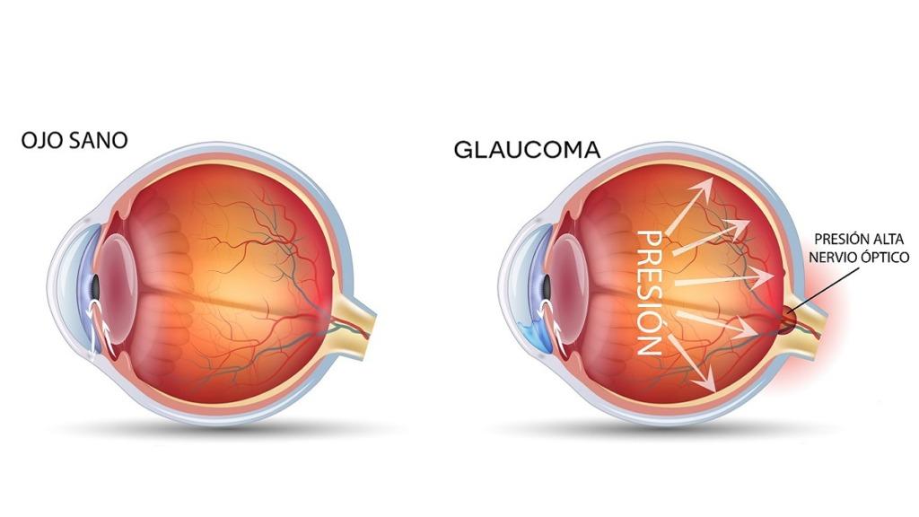 causas de la ceguera: imagen de la comparación de un ojo sano con otro con glaucoma