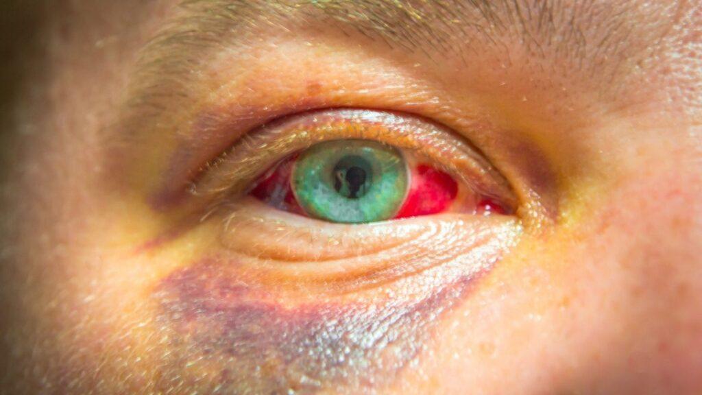accidentes oculares: imagen de un ojo dañado