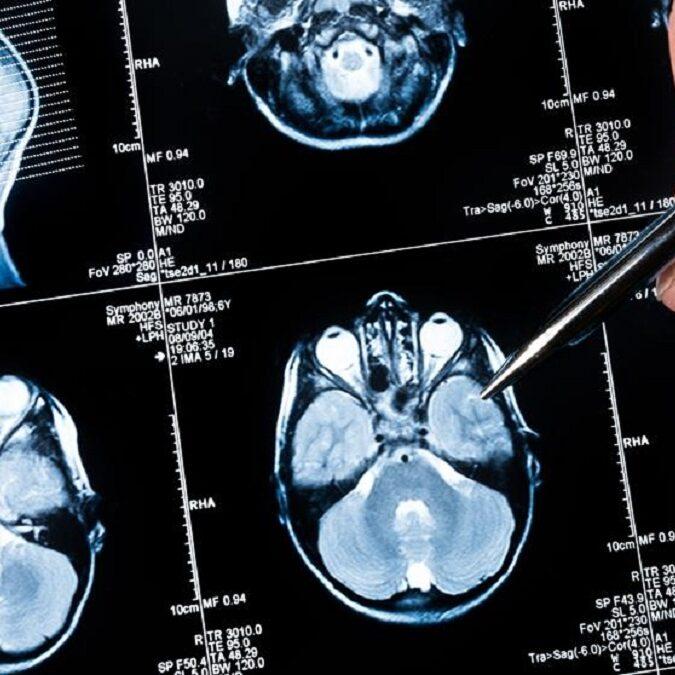 imagen de un TAC de una persona con atrofia cerebral.