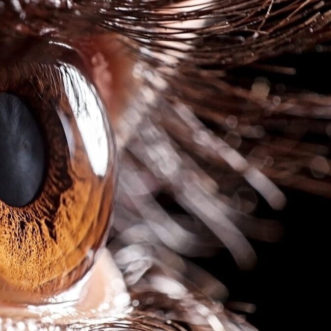 imagen de un ojo con retinitis pigmentosa.